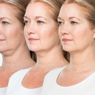 kybella Effects