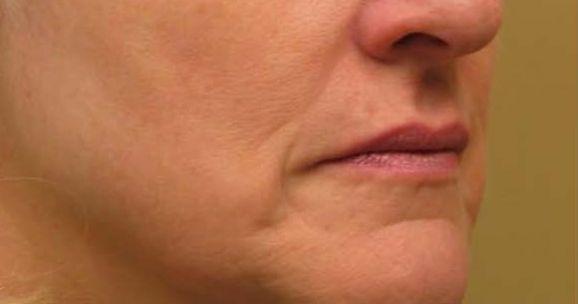 after titan dermatologist jupiter fl