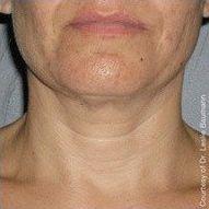 ultherapy dermatologist jupiter fl
