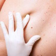 dermatologist jupiter fl