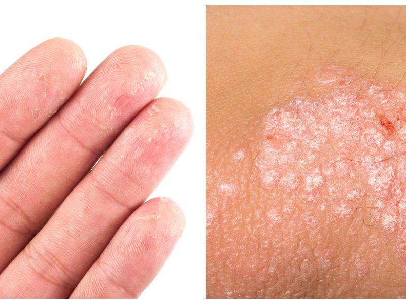 Eczema Psoriasis doctor